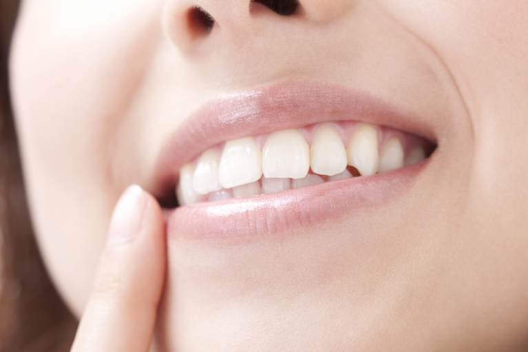 むし歯|石川町のマリーンデンタルクリニック