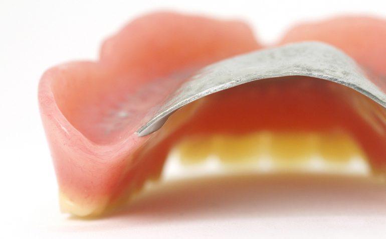 チタン床義歯|石川町のマリーンデンタルクリニック