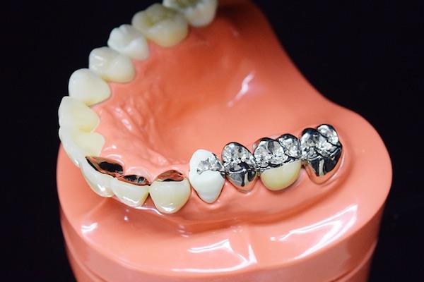 銀歯|石川町のマリーンデンタルクリニック