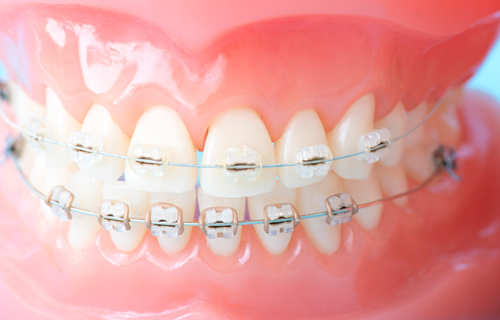 目立たない矯正歯科|石川町のマリーンデンタルクリニック
