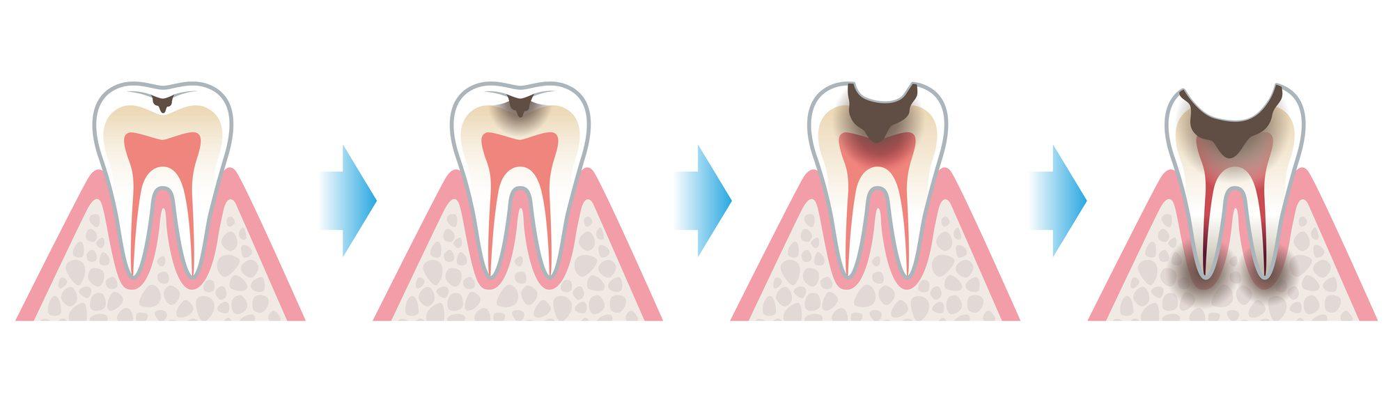 むし歯の進行|石川町のマリーンデンタルクリニック