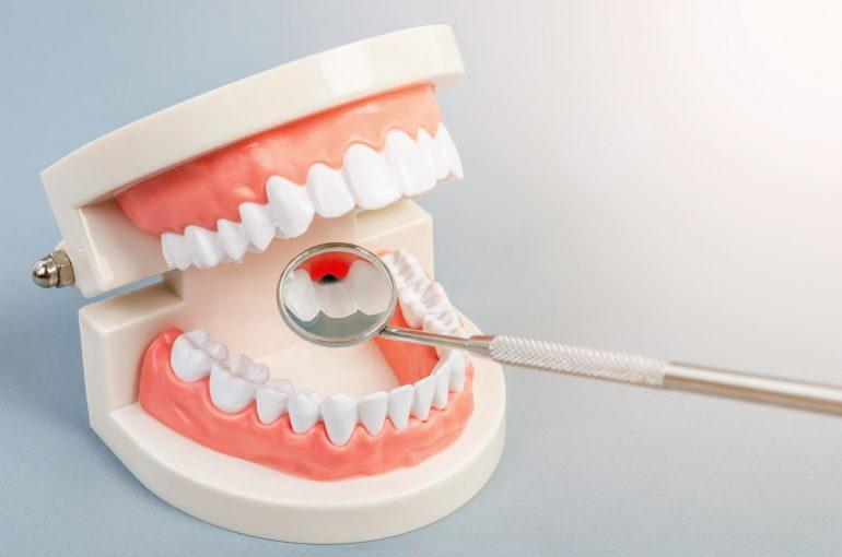 歯周病|石川町のマリーンデンタルクリニック