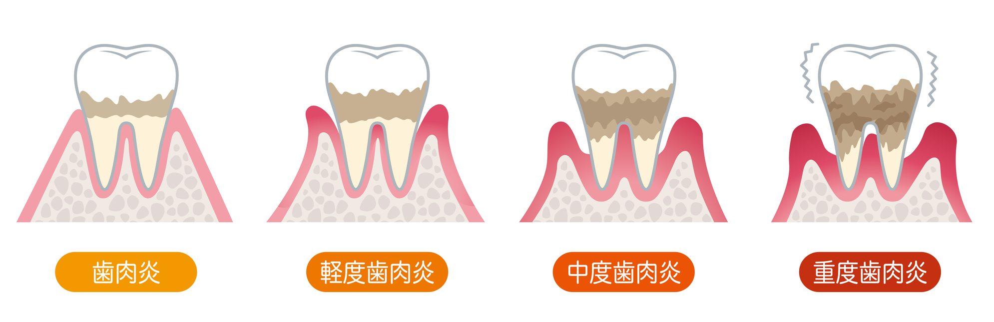 歯周病の進行|石川町のマリーンデンタルクリニック